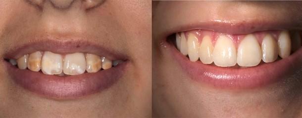 Dientes con alteraciones del color esta podr a ser tu - Clinica dental segovia ...